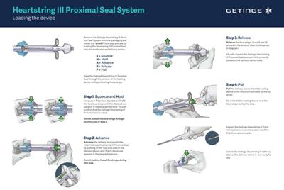 Heartstring III Proximal Seal System - Loading the Device Setup Chart